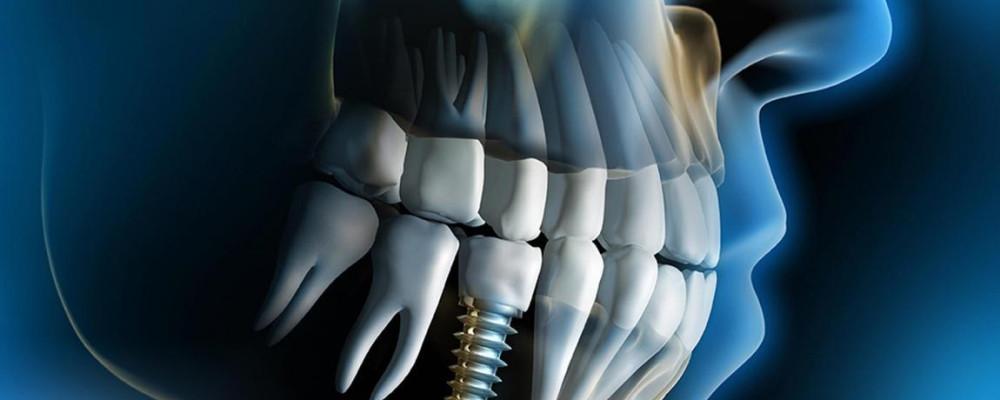 Implantodontia - Turma: IMPLANTE220
