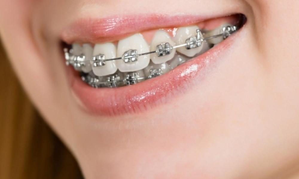 Ortodontia e Ortopedia Funcional dos Maxilares (DUPLA CERTIFICAÇÃO)