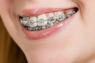 Ortodontia - Turma: ORTO
